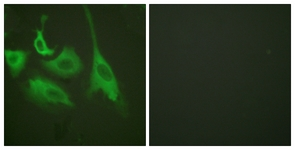 Immunofluorescence of HeLa cells treated with TNF-a 20nM 15', using HSP90B (Phospho-Ser254) Antibody. The sample on the right was incubated with synthetic peptide.