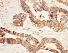 HSP90AA1 / Hsp90 Alpha A1 Antibody - IHC-P: HSP90 antibody testing of human intestinal cancer tissue