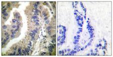 HSP90AA1 / Hsp90 Alpha A1 Antibody - Peptide - + Immunohistochemical analysis of paraffin-embedded human lung carcinoma tissue using HSP90 cyto antibody.