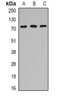Western blot analysis of HSPA6 expression in Jurkat (A); mouse heart (B); rat brain (C) whole cell lysates.
