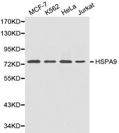 Western blot of HSPA9 pAb in extracts from MCF7, K562, Hela and Jurkat cells.