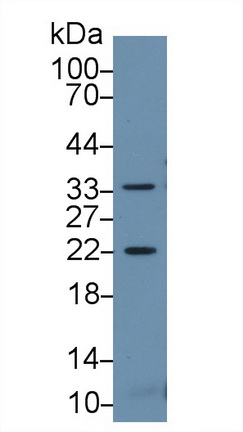 Western Blot; Sample: Mouse Skeletal muscle lysate; Primary Ab: 2µg/ml Rabbit Anti-Mouse HSPb2 Antibody Second Ab: 0.2µg/mL HRP-Linked Caprine Anti-Rabbit IgG Polyclonal Antibody