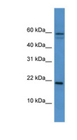 HSPB7 / CvHSP Antibody - HSPB7 / CvHSP antibody Western blot of Mouse Heart lysate. This image was taken for the unconjugated form of this product. Other forms have not been tested.