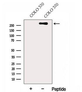 HSPG2 / Perlecan Antibody - Western blot analysis of extracts of COLO 320 cells using HSPG2-Specific antibody. The lane on the left was treated with blocking peptide.