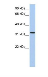 HSU79274 / C12orf24 Antibody - Fetal heart lysate. Antibody concentration: 1.0 ug/ml. Gel concentration: 12%.  This image was taken for the unconjugated form of this product. Other forms have not been tested.