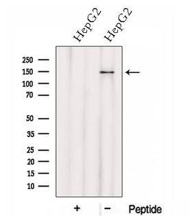 HTATSF1 / TAT-SF1 Antibody - Western blot analysis of extracts of HepG2 cells using HTATSF1 antibody. The lane on the left was treated with blocking peptide.