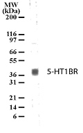 Western blot of 5-HT1BR in human brain lysate with anti-5-HT1BR pcAb. A protein band of approximate molecular weight of 40-41kD was detected.