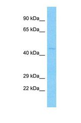 Western blot of Human A549. HTR1E antibody dilution 3.0 ug/ml.  This image was taken for the unconjugated form of this product. Other forms have not been tested.