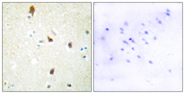 Immunohistochemistry analysis of paraffin-embedded human brain tissue, using 5-HT-2B Antibody. The picture on the right is blocked with the synthesized peptide.