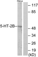 Western blot analysis of lysates from HeLa cells, using 5-HT-2B Antibody. The lane on the right is blocked with the synthesized peptide.