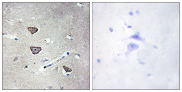 Immunohistochemistry analysis of paraffin-embedded human brain tissue, using 5-HT-2C Antibody. The picture on the right is blocked with the synthesized peptide.