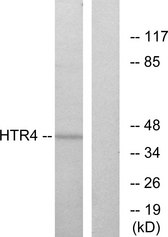 Western blot analysis of lysates from NIH/3T3 cells, using HTR4 Antibody. The lane on the right is blocked with the synthesized peptide.