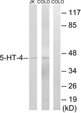 Western blot analysis of lysates from Jurkat/COLO205, using 5-HT-4 Antibody. The lane on the right is blocked with the synthesized peptide.