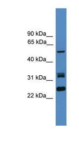 LRRFIP2 antibody LS-C116870 Western blot of HT1080 cell lysate.  This image was taken for the unconjugated form of this product. Other forms have not been tested.