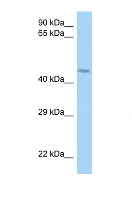 LRRFIP2 antibody LS-C146145 Western blot of Jurkat Cell lysate. Antibody concentration 1 ug/ml.  This image was taken for the unconjugated form of this product. Other forms have not been tested.