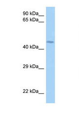 LRRFIP2 antibody Western blot of Jurkat Cell lysate. Antibody concentration 1 ug/ml.  This image was taken for the unconjugated form of this product. Other forms have not been tested.