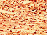 Immunohistochemistry image at a dilution of 1:300 and staining in paraffin-embedded human melanoma cancer performed on a Leica BondTM system. After dewaxing and hydration, antigen retrieval was mediated by high pressure in a citrate buffer (pH 6.0) . Section was blocked with 10% normal goat serum 30min at RT. Then primary antibody (1% BSA) was incubated at 4 °C overnight. The primary is detected by a biotinylated secondary antibody and visualized using an HRP conjugated SP system.