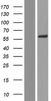 AAAS / Adracalin Protein - Western validation with an anti-DDK antibody * L: Control HEK293 lysate R: Over-expression lysate