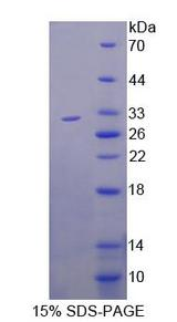 ABCB11 / BSEP Protein - Recombinant ATP Binding Cassette Transporter B11 By SDS-PAGE