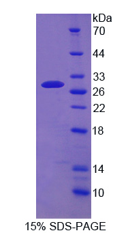 ABCC4 / MRP4 Protein - Recombinant ATP Binding Cassette Transporter C4 By SDS-PAGE