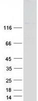 ABL2 Protein - Purified recombinant protein ABL2 was analyzed by SDS-PAGE gel and Coomassie Blue Staining