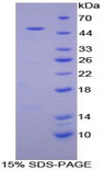 ACE / CD143 Protein