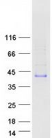 ACRV1/Intra-Acrosomal Protein Protein - Purified recombinant protein ACRV1 was analyzed by SDS-PAGE gel and Coomassie Blue Staining