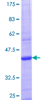 ACSS2 / ACAS2 Protein - 12.5% SDS-PAGE Stained with Coomassie Blue.