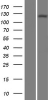 ADCY1 / Adenylate Cyclase 1 Protein - Western validation with an anti-DDK antibody * L: Control HEK293 lysate R: Over-expression lysate
