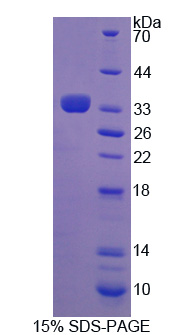 ADRBK2 / GRK3 Protein - Recombinant Adrenergic Receptor Beta Kinase 2 By SDS-PAGE