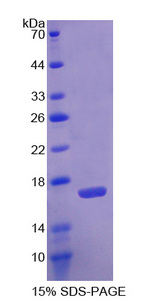 AGMAT Protein - Recombinant  Agmatine Ureohydrolase By SDS-PAGE