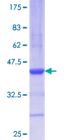 AGR2 Protein - 12.5% SDS-PAGE Stained with Coomassie Blue.