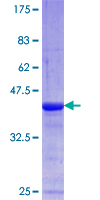 AKAP6 / MAKAP Protein - 12.5% SDS-PAGE Stained with Coomassie Blue.