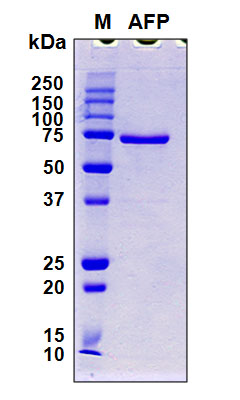 Alpha-Fetoprotein Protein - SDS-PAGE under reducing conditions and visualized by Coomassie blue staining