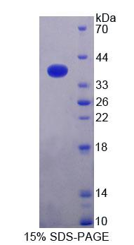 Alpha SNAP Protein - Recombinant N-Ethylmaleimide Sensitive Factor Attachment Protein Alpha By SDS-PAGE