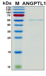 ANGPTL1 Protein - SDS-PAGE under reducing conditions and visualized by Coomassie blue staining
