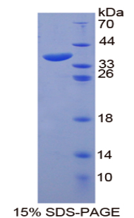ANK1 / Ankyrin Protein - Recombinant  Ankyrin 1, Erythrocytic By SDS-PAGE