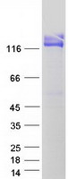 ANPEP / CD13 Protein - Purified recombinant protein ANPEP was analyzed by SDS-PAGE gel and Coomassie Blue Staining