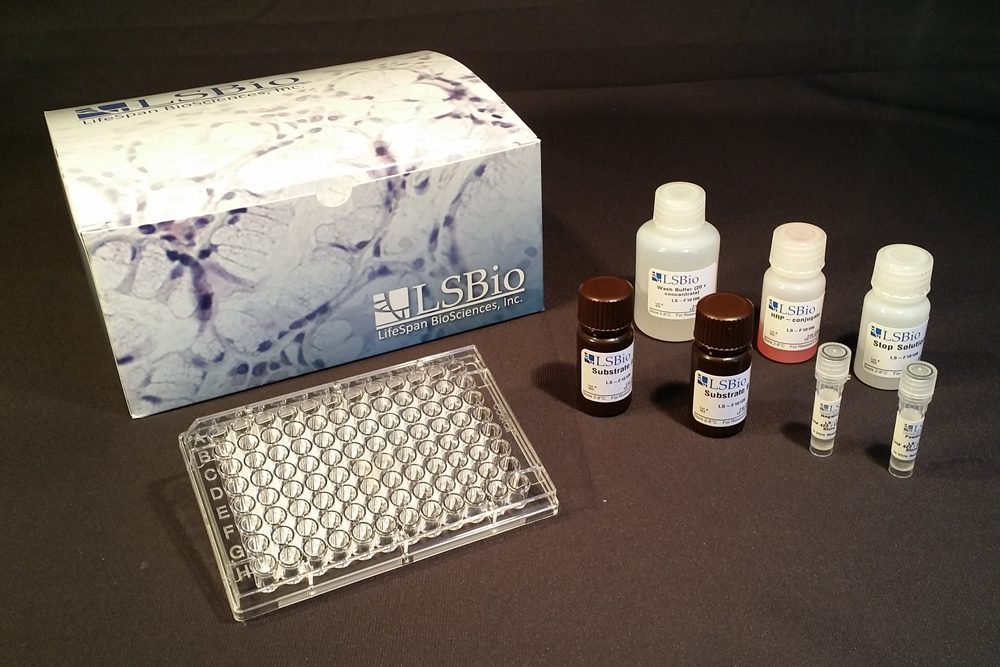 Anti-EBV / Epstein-Barr virus antibody (IgG) ELISA Kit