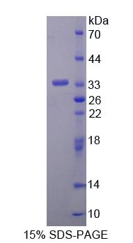 ANTXR2 / CMG2 Protein - Recombinant Anthrax Toxin Receptor 2 By SDS-PAGE