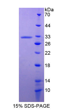 ANXA6/Annexin A6/Annexin VI Protein - Recombinant  Annexin A6 By SDS-PAGE