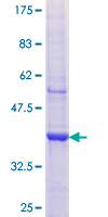 AP1M2 Protein - 12.5% SDS-PAGE Stained with Coomassie Blue.