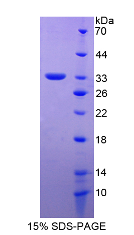 APBA2 Protein - Recombinant  Amyloid Beta Precursor Protein Binding Protein A2 By SDS-PAGE