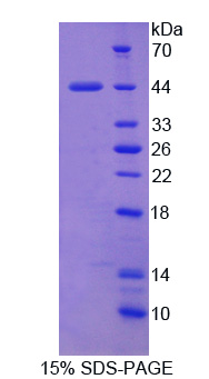 API5 Protein - Recombinant Apoptosis Inhibitor 5 By SDS-PAGE