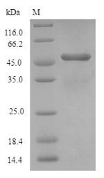 AQP1 / Aquaporin 1 Protein - (Tris-Glycine gel) Discontinuous SDS-PAGE (reduced) with 5% enrichment gel and 15% separation gel.