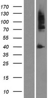 AR / Androgen Receptor Protein - Western validation with an anti-DDK antibody * L: Control HEK293 lysate R: Over-expression lysate