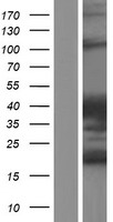 ARHGAP27 Protein - Western validation with an anti-DDK antibody * L: Control HEK293 lysate R: Over-expression lysate
