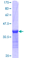 ARHGEF6 Protein - 12.5% SDS-PAGE Stained with Coomassie Blue.