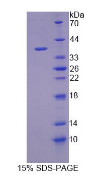 ARPC2 / p34-Arc Protein - Recombinant  Actin Related Protein 2/3 Complex Subunit 2 By SDS-PAGE