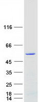 ARRDC1 Protein - Purified recombinant protein ARRDC1 was analyzed by SDS-PAGE gel and Coomassie Blue Staining